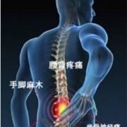 老王说健康 腰椎疼痛问题